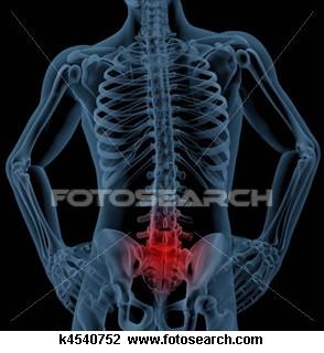 Gambaran posisi cedera Tulang Belakang